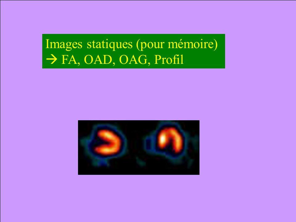 Images statiques (pour mémoire)
