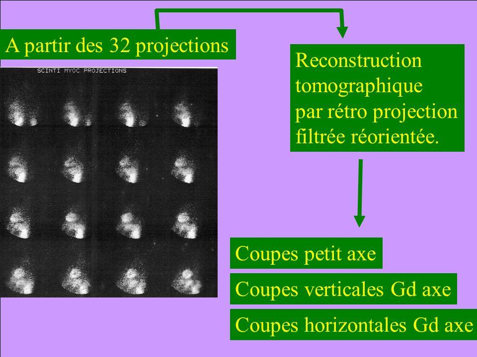 Reconstruction tomographique. par rétro projection. filtrée réorientée. A partir des 32 projections.