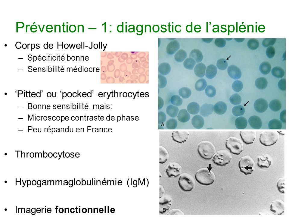 Prévention – 1: diagnostic de l'asplénie