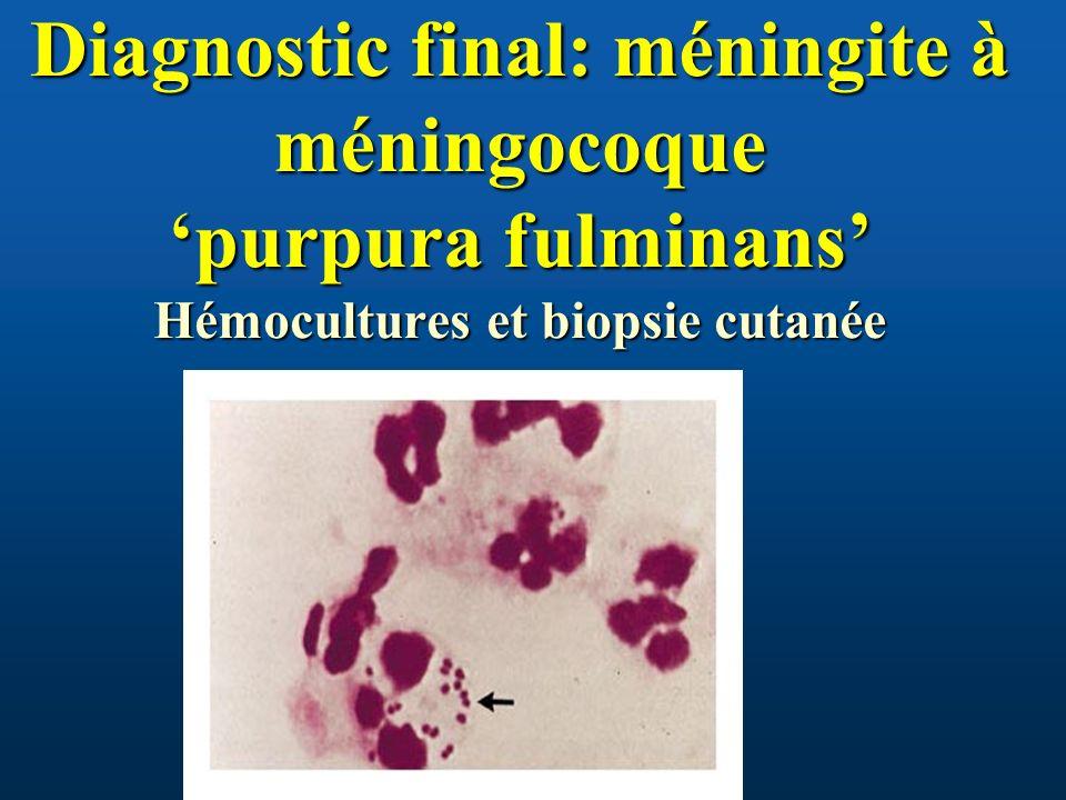 Diagnostic final: méningite à méningocoque 'purpura fulminans' Hémocultures et biopsie cutanée