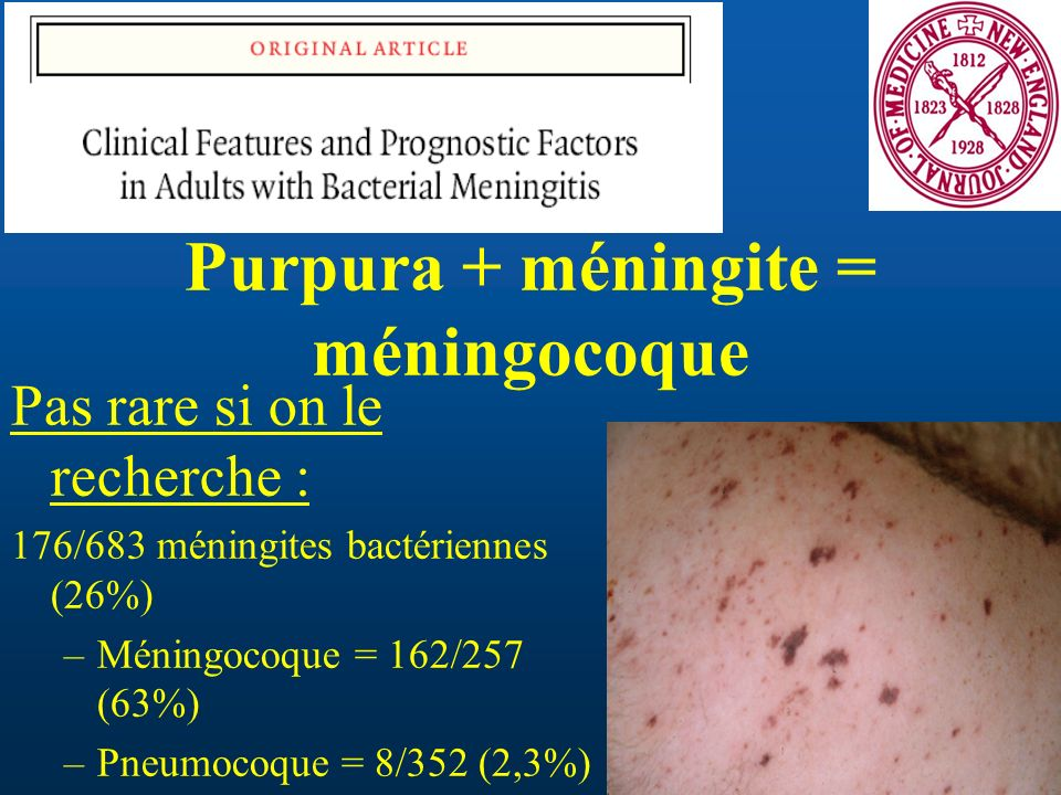 Purpura + méningite = méningocoque