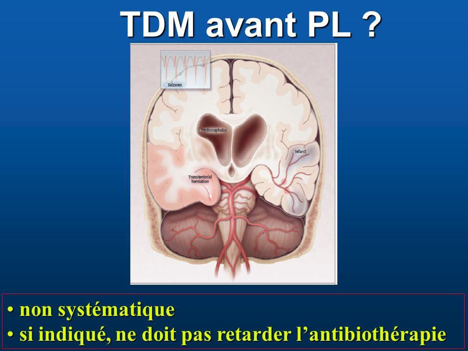 TDM avant PL non systématique