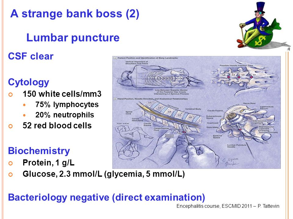 A strange bank boss (2) Lumbar puncture