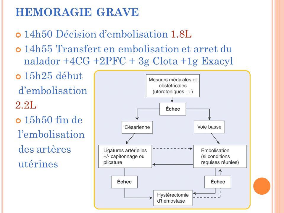 HEMORAGIE GRAVE 14h50 Décision d'embolisation 1.8L
