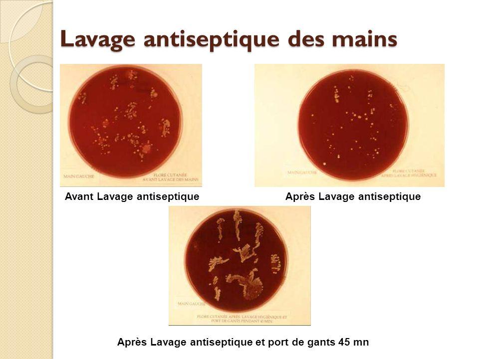 Lavage antiseptique des mains