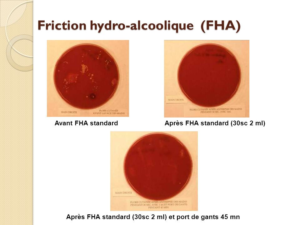 Friction hydro-alcoolique (FHA)
