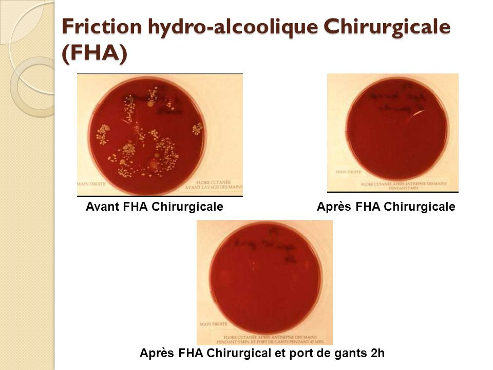 Friction hydro-alcoolique Chirurgicale (FHA)