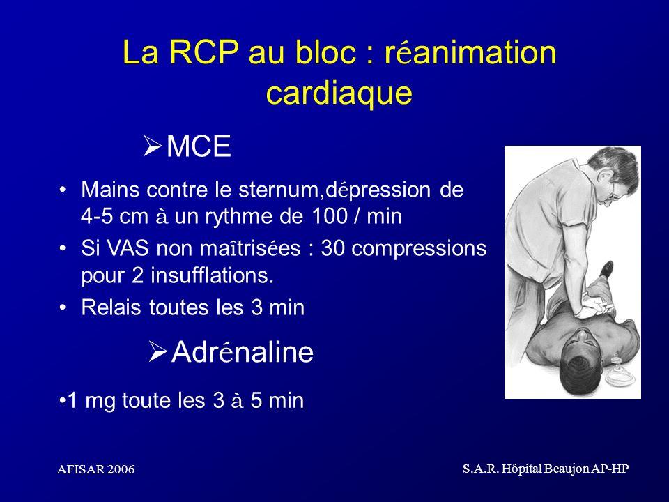La RCP au bloc : réanimation cardiaque