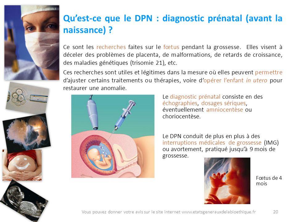 Qu'est-ce que le DPN : diagnostic prénatal (avant la naissance)