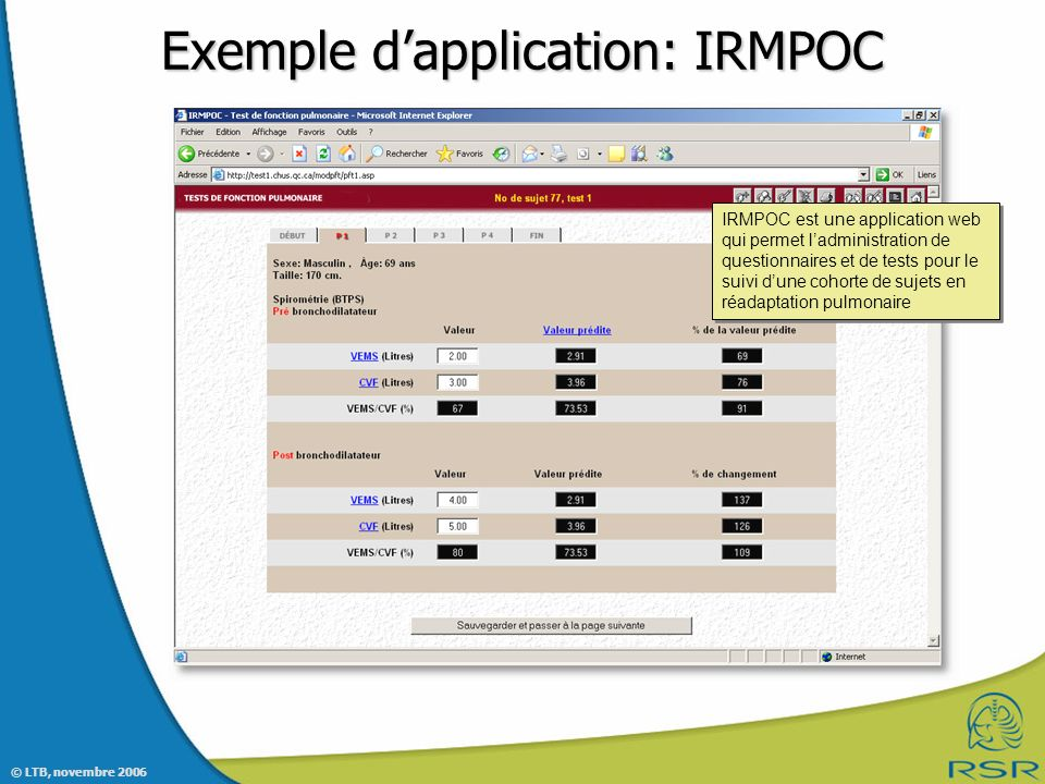 Exemple d'application: IRMPOC