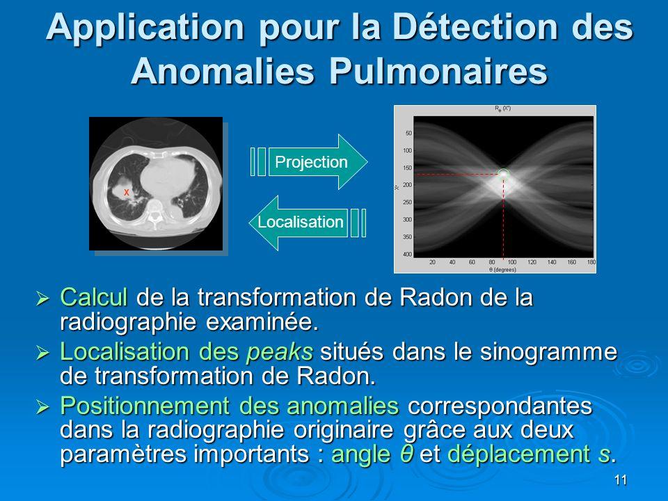 Application pour la Détection des Anomalies Pulmonaires