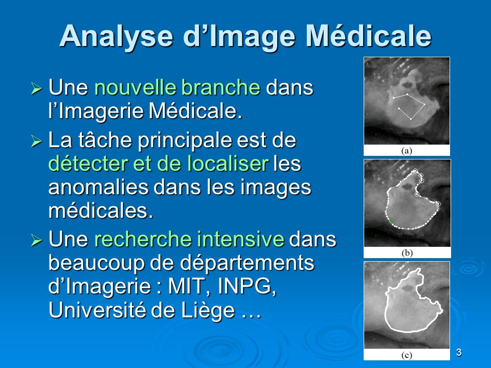 Analyse d'Image Médicale