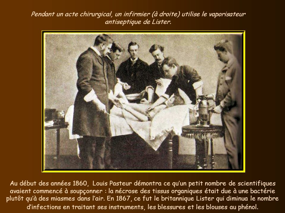 Pendant un acte chirurgical, un infirmier (à droite) utilise le vaporisateur antiseptique de Lister.