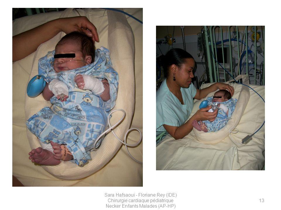 Sur ces premières photos, vous pouvez voir un nouveau né de 2 jours avec une TGV qui a été accueilli sur les soins continus en préopératoire. Ce patient était porteur d'une VVP sur laquelle passait de la Prostaglandine. Il était sous O2 aux lunettes pour des désaturations profondes et répétées. Ces photos ont été réalisées peu de temps avant son départ au bloc opératoire.