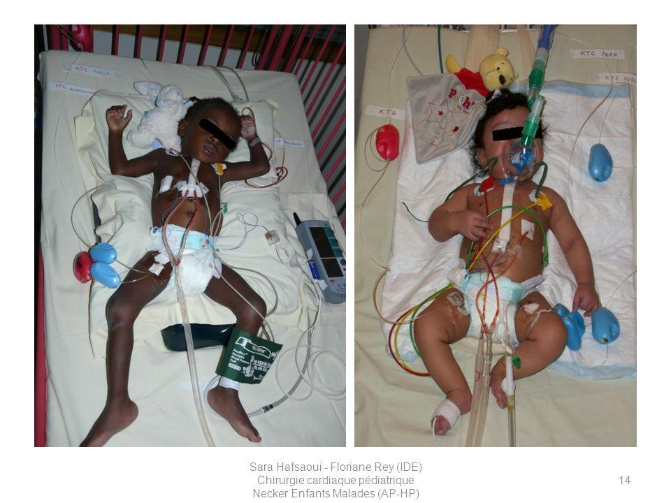 Patiente âgée de 14 mois, a J1 de son intervention qui présentait des troubles du rythme de type bradycardies. Vous pouvez donc voir son pacemaker externe relié aux électrodes épicardiques.