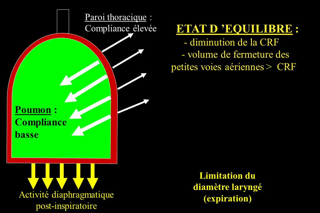 Limitation du diamètre laryngé (expiration)