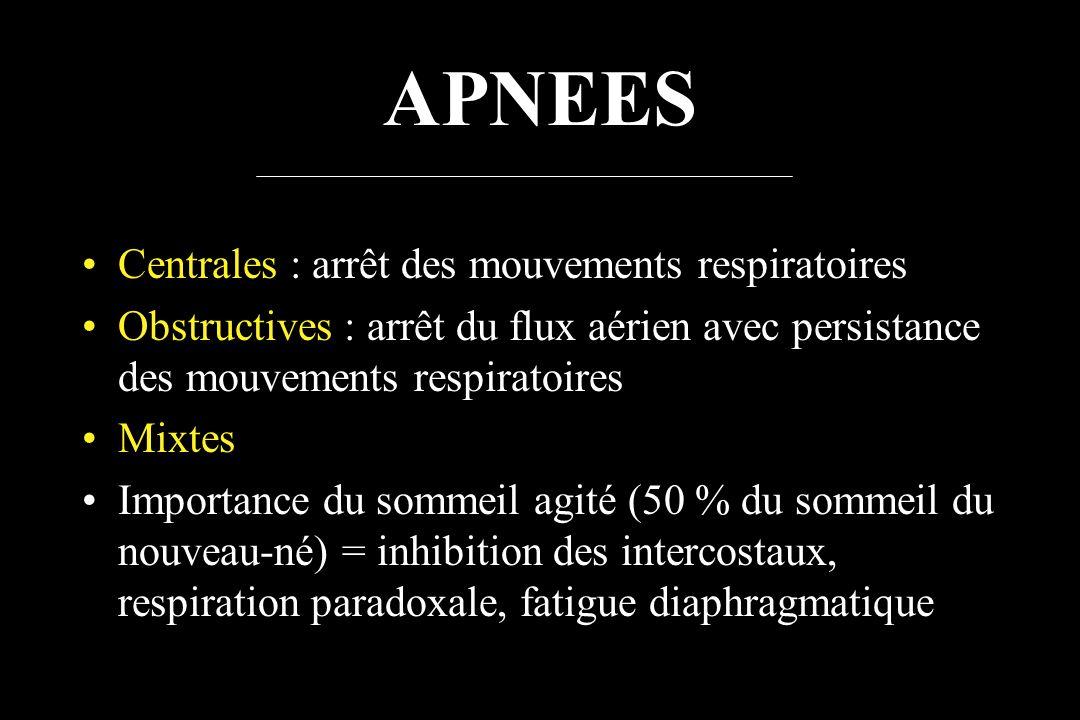 APNEES Centrales : arrêt des mouvements respiratoires