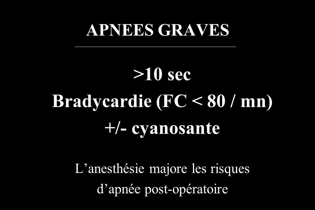 Bradycardie (FC < 80 / mn)