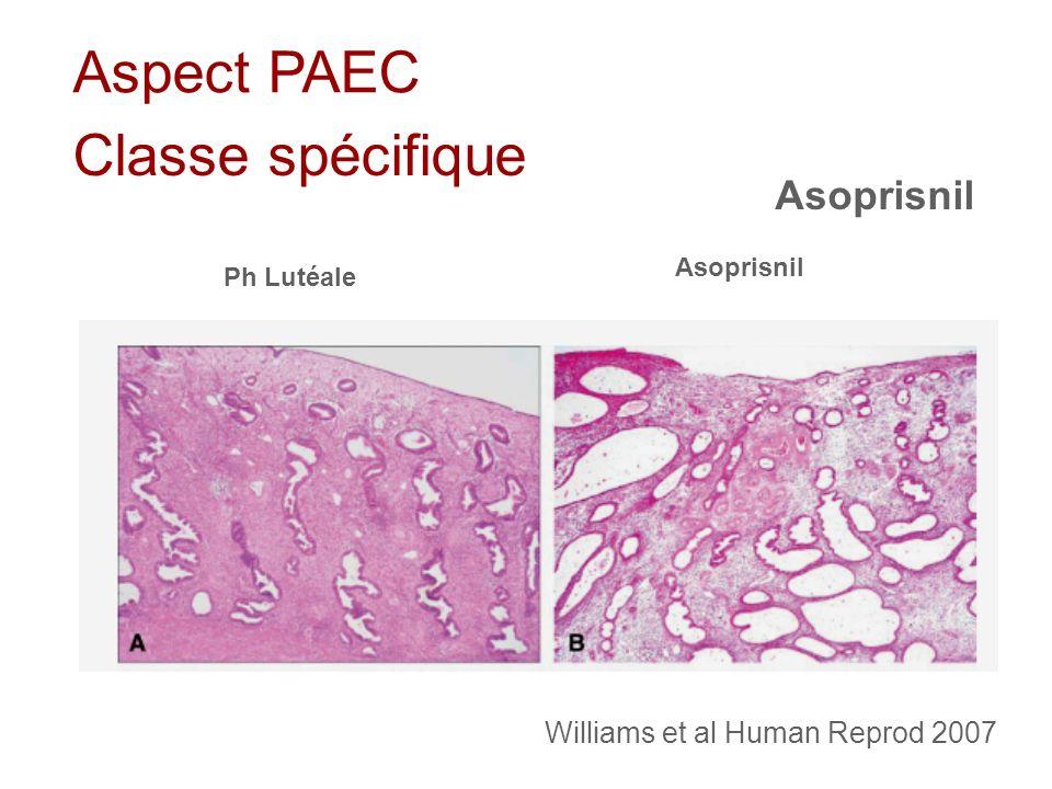 Aspect PAEC Classe spécifique Asoprisnil