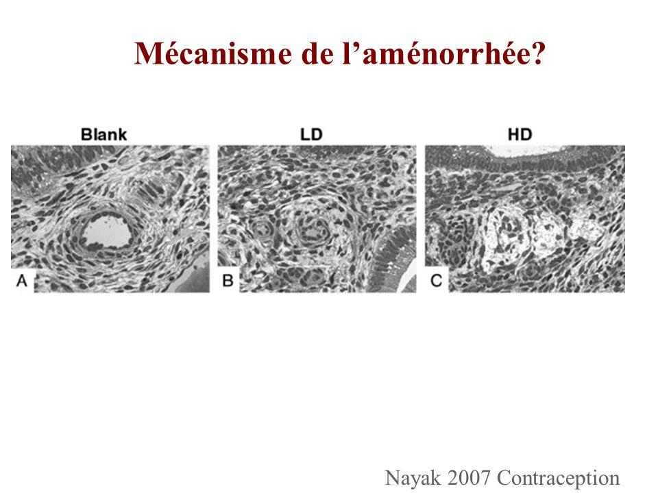 Mécanisme de l'aménorrhée