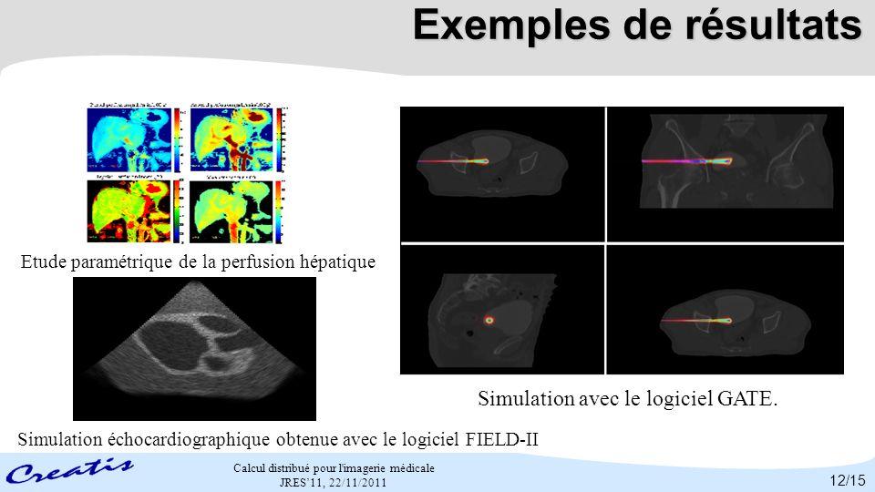 Exemples de résultats Simulation avec le logiciel GATE.