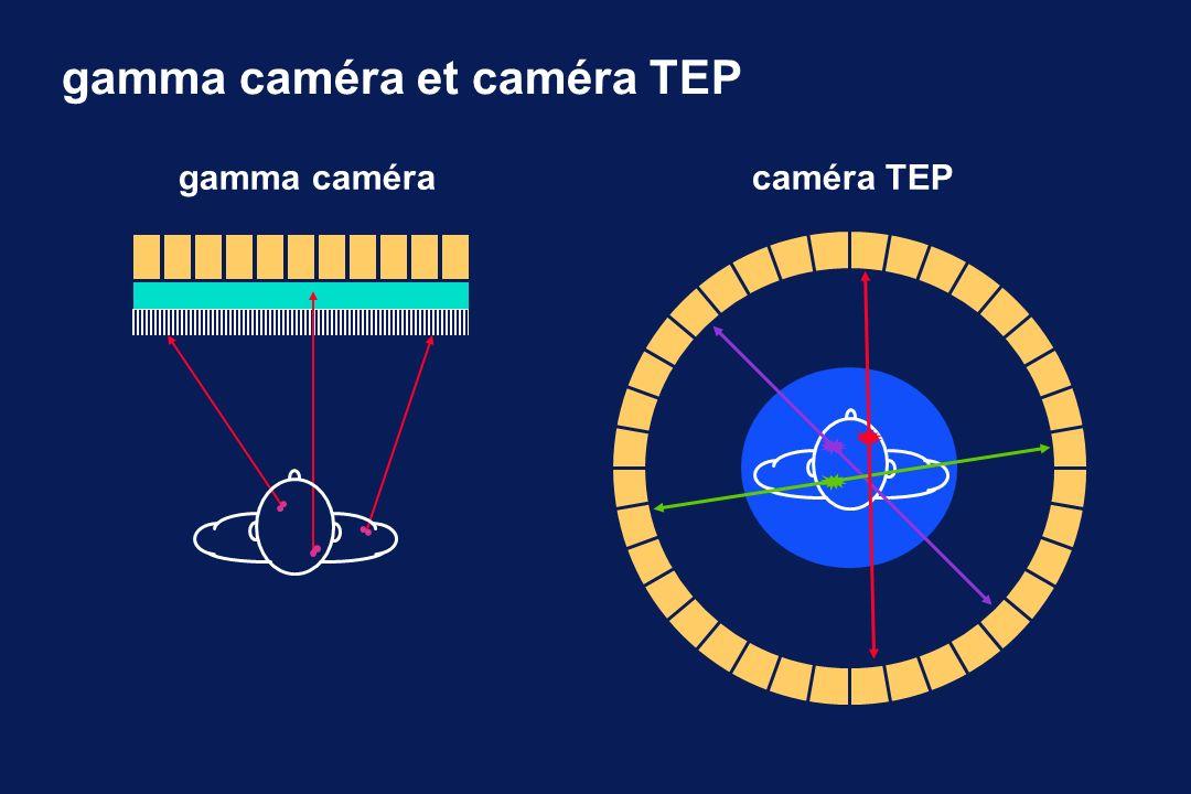 gamma caméra et caméra TEP