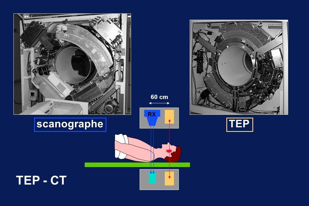 60 cm RX scanographe TEP TEP - CT