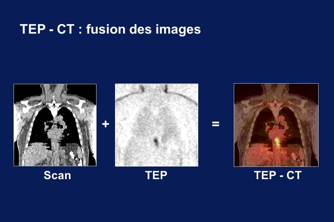 TEP - CT : fusion des images