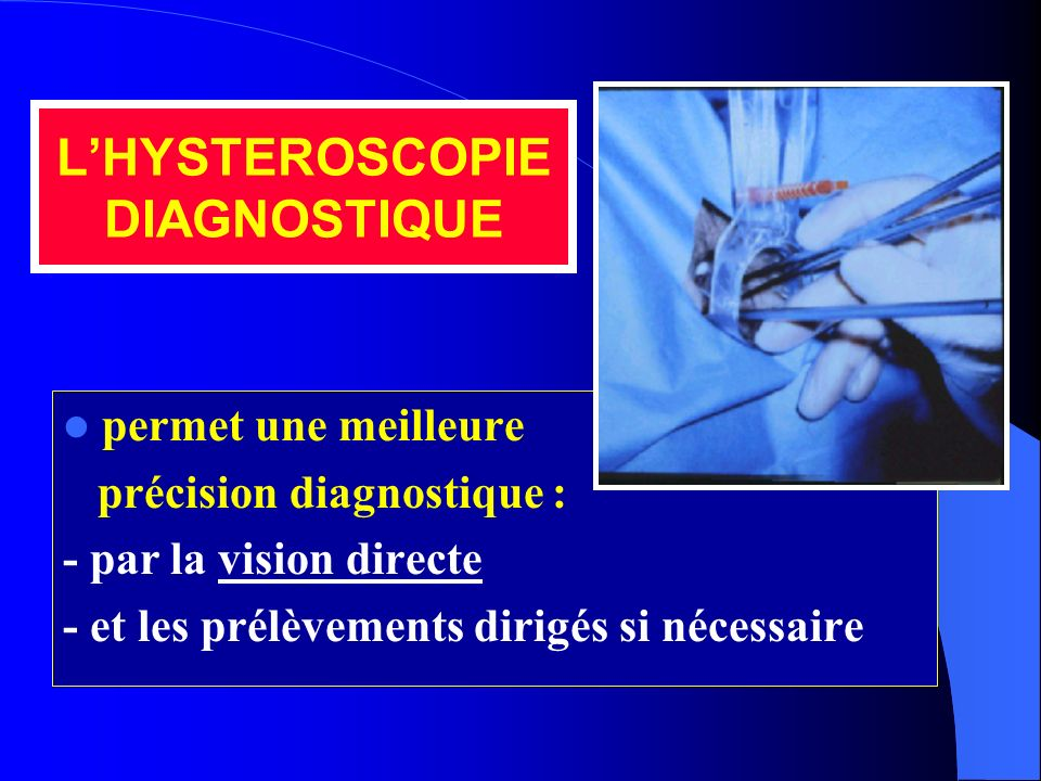 L'HYSTEROSCOPIE DIAGNOSTIQUE