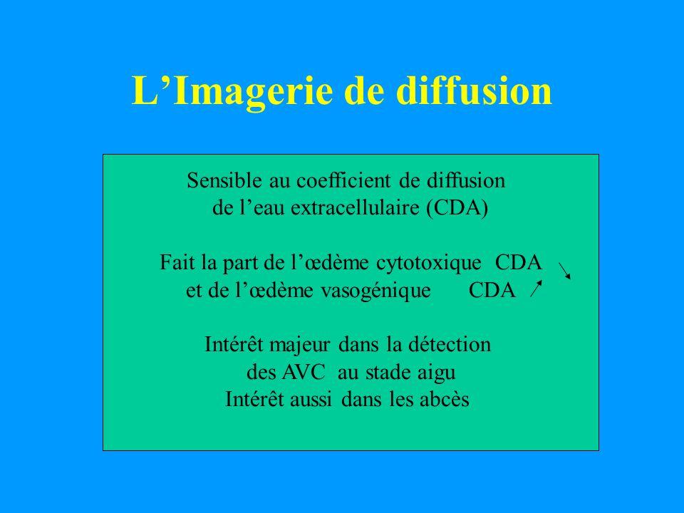 L'Imagerie de diffusion