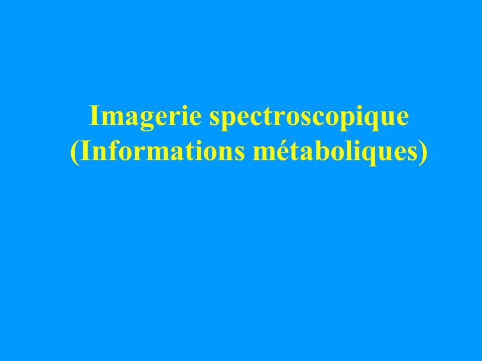 Imagerie spectroscopique (Informations métaboliques)