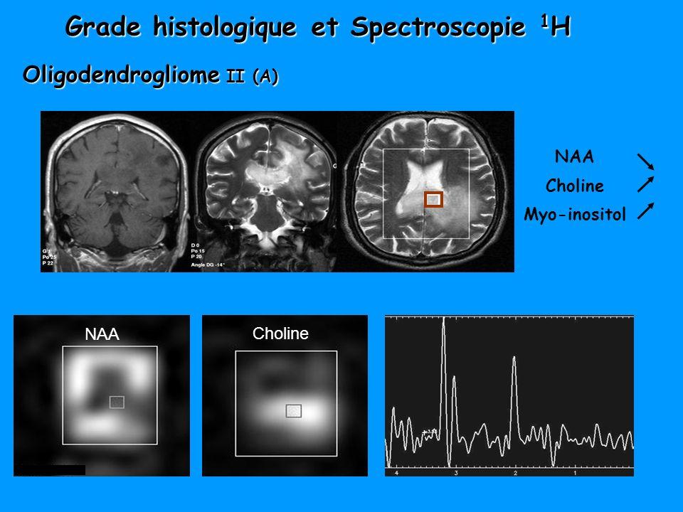 Grade histologique et Spectroscopie 1H Oligodendrogliome II (A)