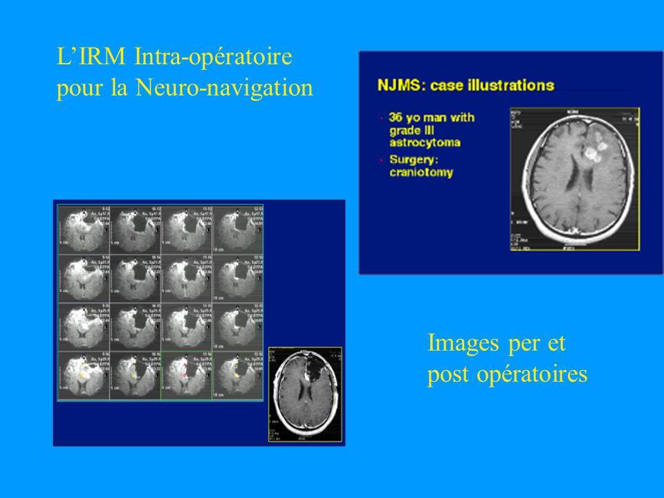 L'IRM Intra-opératoire pour la Neuro-navigation