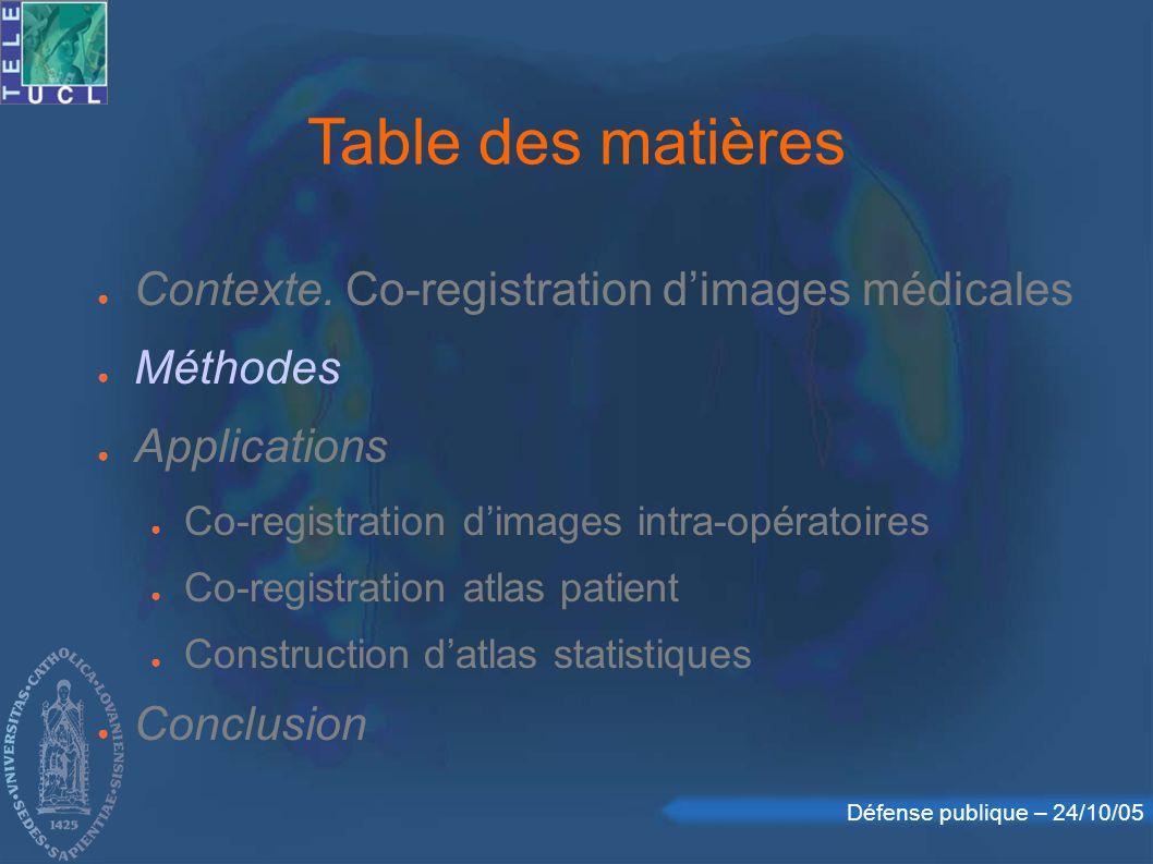 Table des matières Contexte. Co-registration d'images médicales