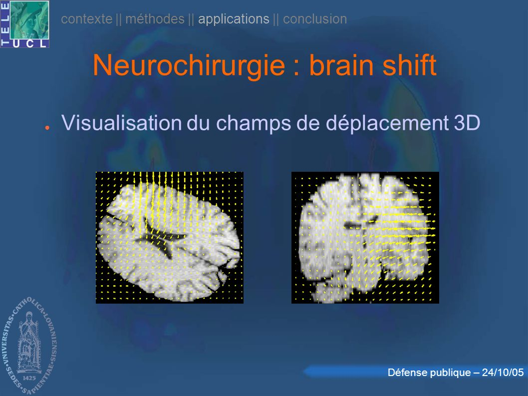 Neurochirurgie : brain shift