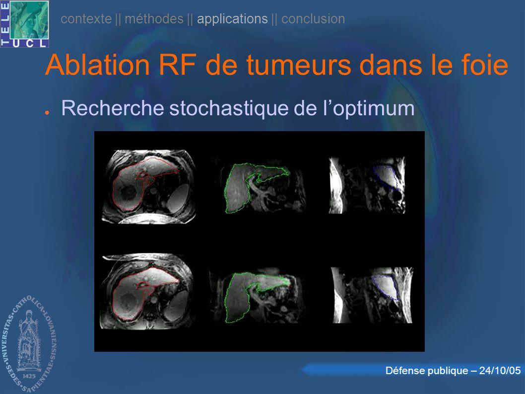 Ablation RF de tumeurs dans le foie