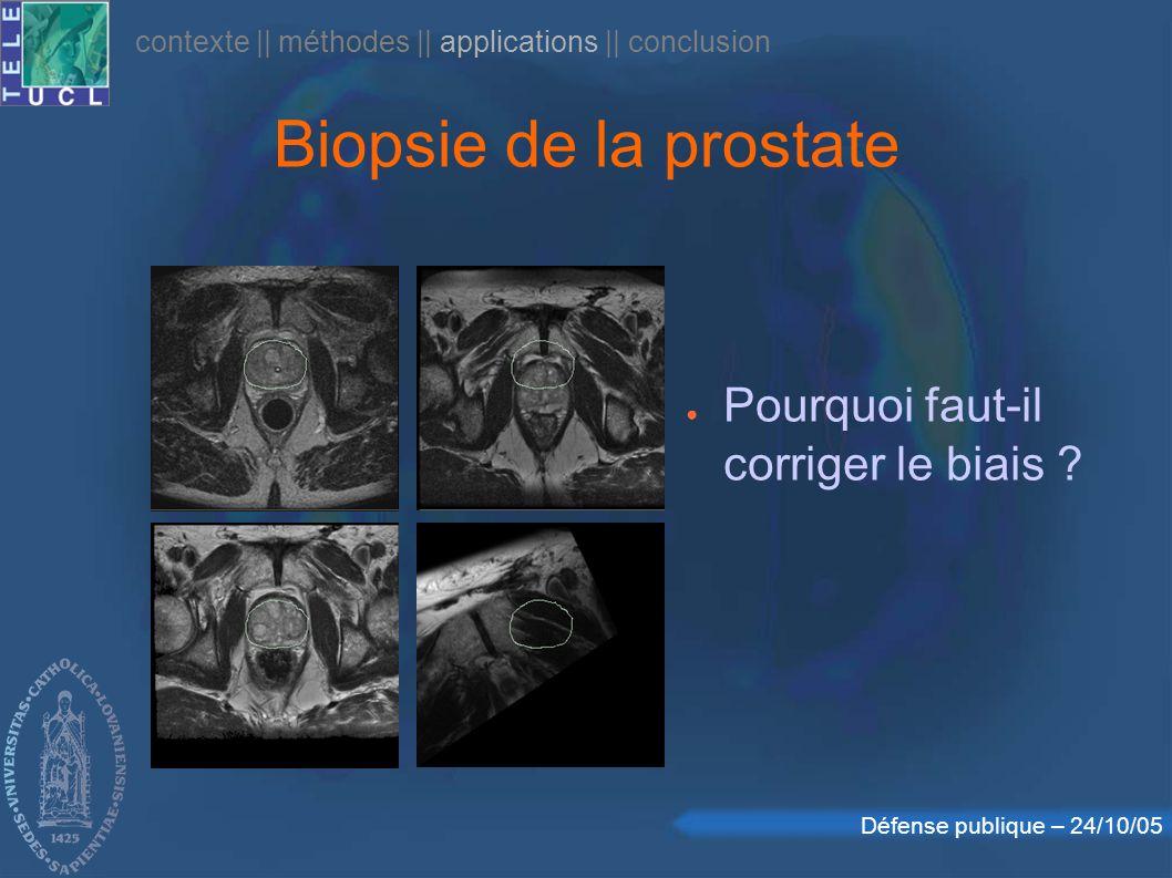 Biopsie de la prostate Pourquoi faut-il corriger le biais