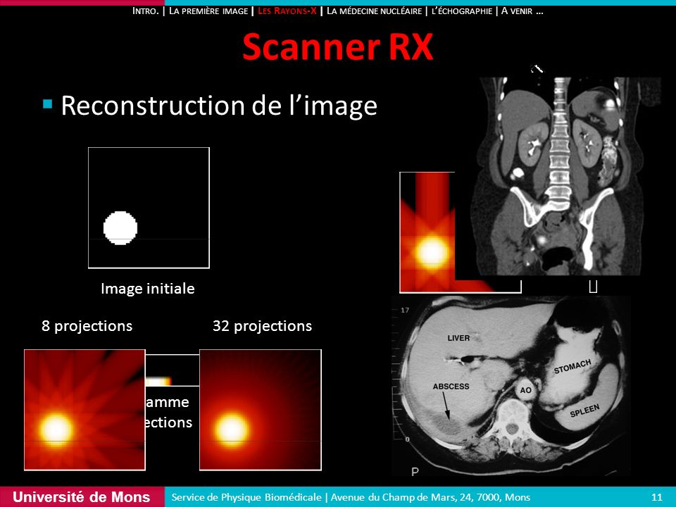 Scanner RX Reconstruction de l'image 135° 90° Image initiale 45°