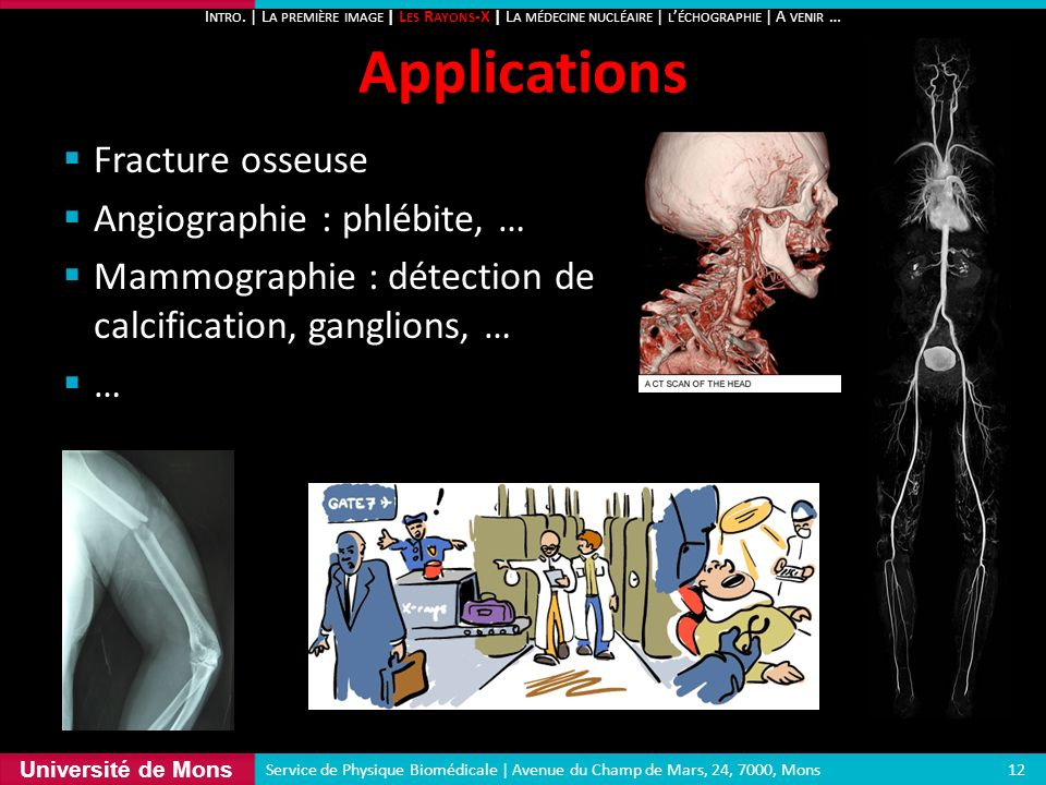 Applications Fracture osseuse Angiographie : phlébite, …