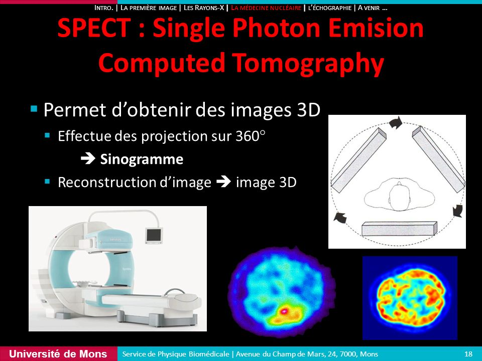 SPECT : Single Photon Emision Computed Tomography