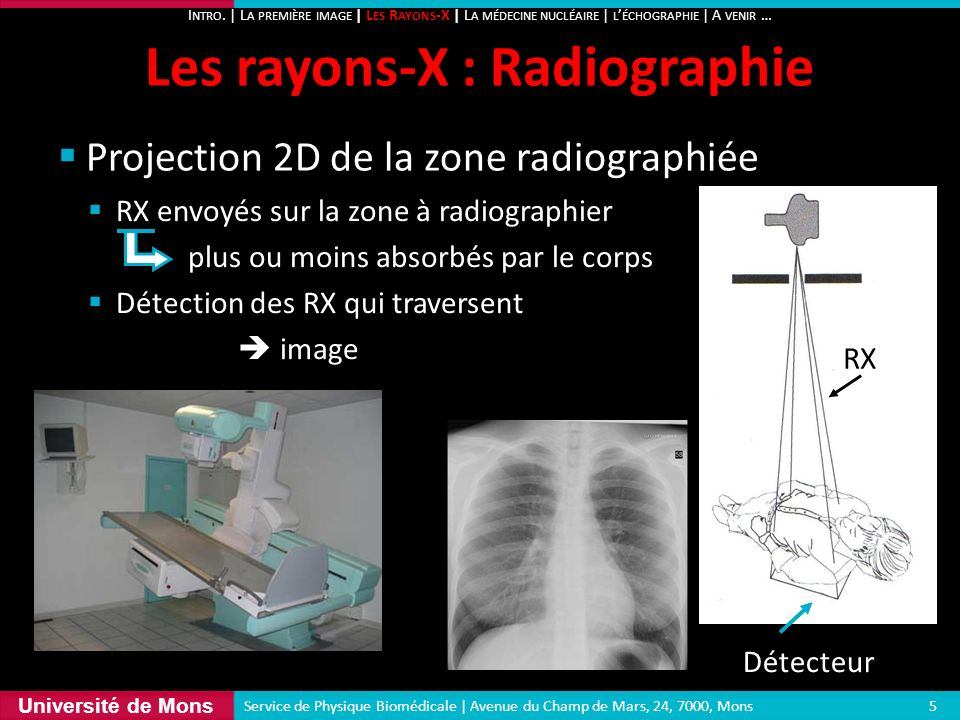 Les rayons-X : Radiographie