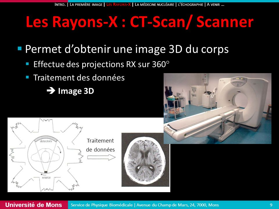 Les Rayons-X : CT-Scan/ Scanner