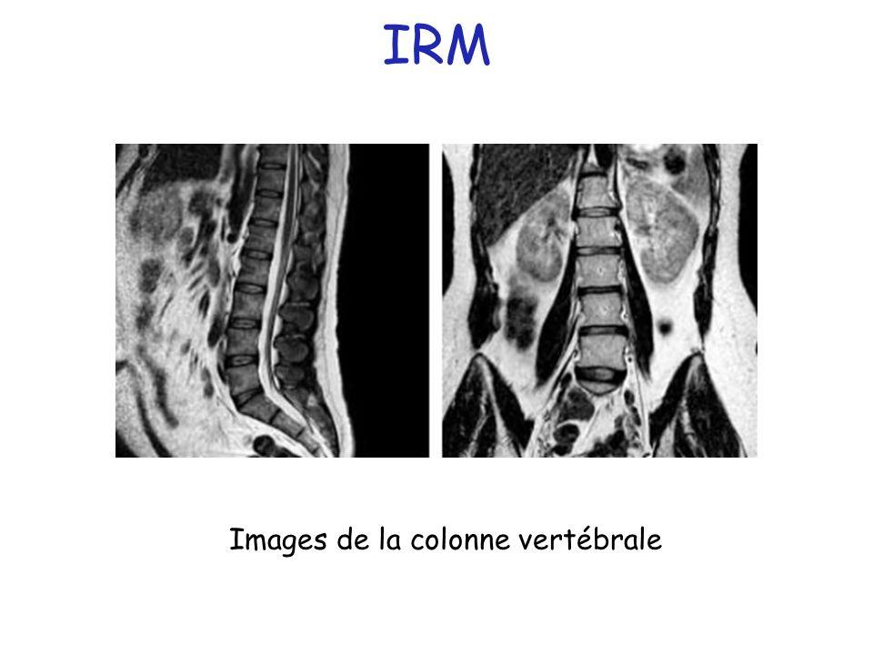Images de la colonne vertébrale