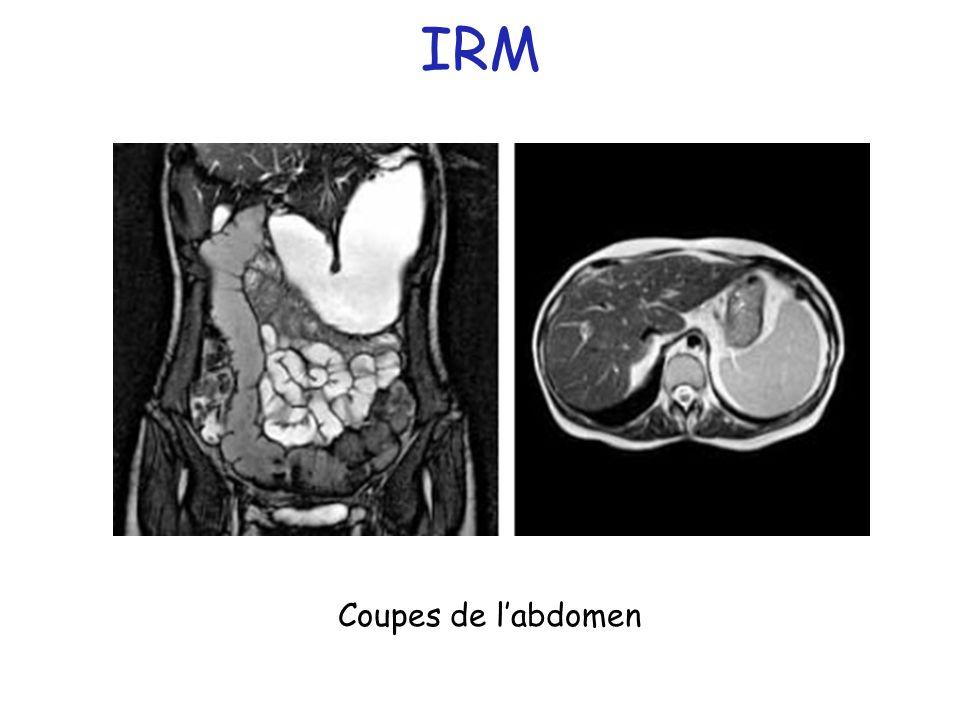 IRM Coupes de l'abdomen