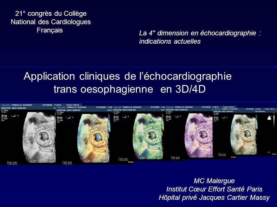 Application cliniques de l'échocardiographie