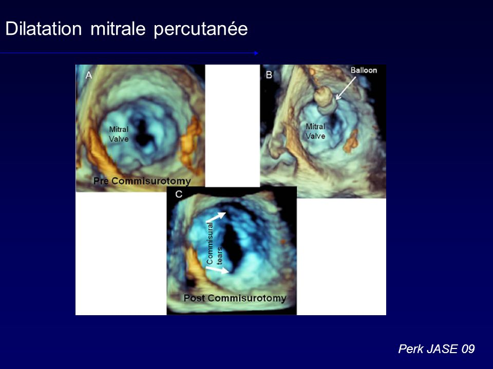 Dilatation mitrale percutanée