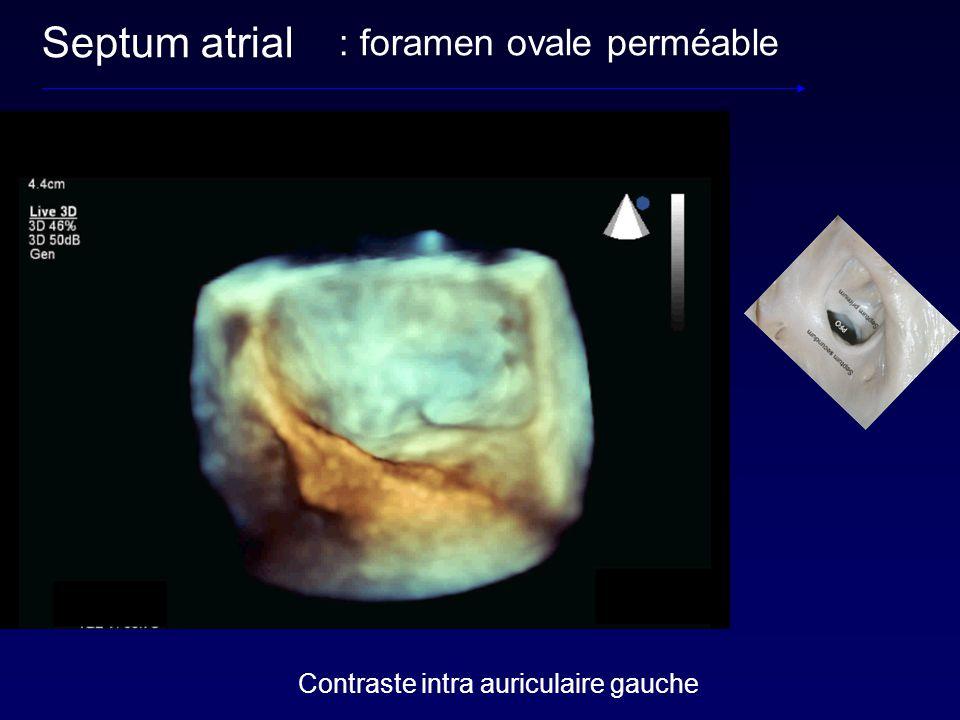 Septum atrial : foramen ovale perméable