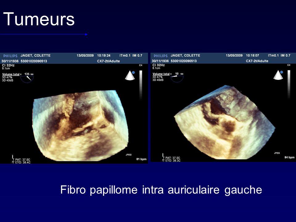 Tumeurs Fibro papillome intra auriculaire gauche