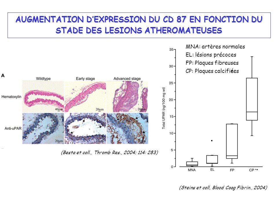 AUGMENTATION D'EXPRESSION DU CD 87 EN FONCTION DU STADE DES LESIONS ATHEROMATEUSES