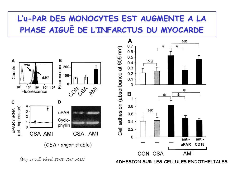 L'u-PAR DES MONOCYTES EST AUGMENTE A LA PHASE AIGUË DE L'INFARCTUS DU MYOCARDE